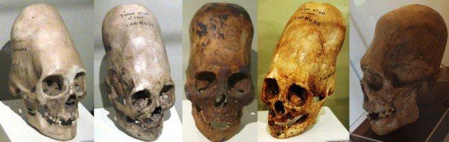 cranio túmulo em Bradford County